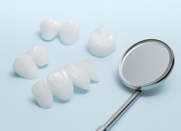 A variety of metal free dental restorations