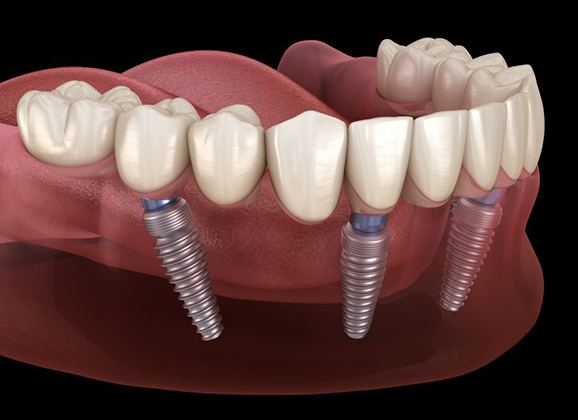 implant-retained dentures on bottom arch