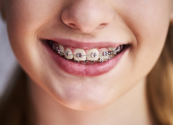Patient with traditional braces from their Brooklyn orthodontist
