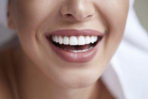 Closeup of beautiful, straightened smile with veneers in Brooklyn